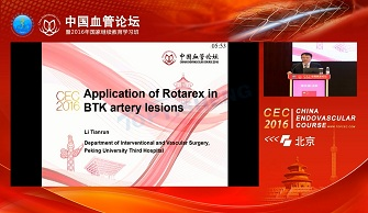 Application of Rotarex in BTK artery lesions