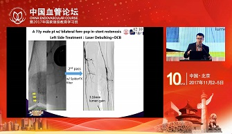 DCB after photoablation improves outcome in femoropopliteal in-stent restenosis:A typical self-control case(岳嘉宁)