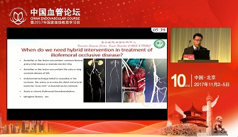 The Role and Result of Hybrid Interventionin Treatment of Iliofemoral Occlusive Disease(沈晨阳)