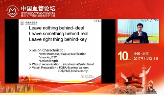 Initial experience of interwoven nitinol stents-The China experience(包俊敏)