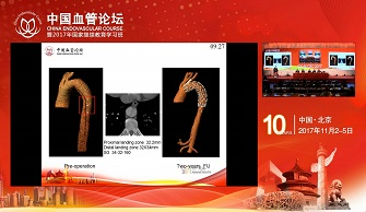 The Regularity of Taper Descending Thoracic Aortic to help TEVAR(jiaxin)
