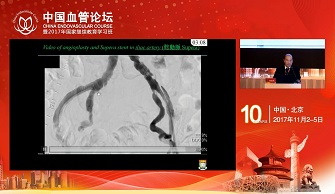 New Applications of Supera Stents in Chinese(陈耀志)