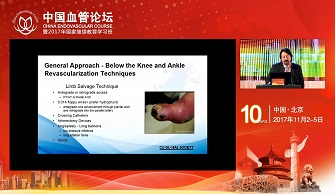 General Approach-Below the Knee and Ankle Revascularization Techniques(Robert Beasley)